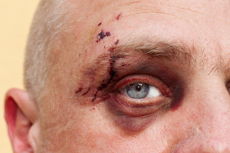 Dog Bite Wound on Man's Face